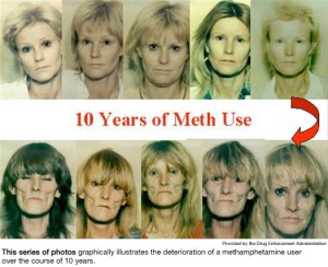 Image result for effects of meth use