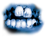 "The toxic ingredients in meth lead to severe tooth decay known as ""meth mouth."" The teeth become black, stained, and rotting, often to the point where they have to be pulled. The teeth and gums are destroyed from the inside, and the roots rot away."