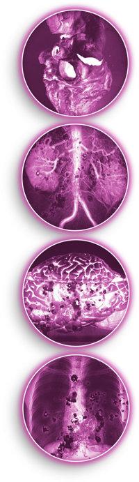 Kokain schädigt das Herz, die Nieren, das Gehirn und die Lunge.