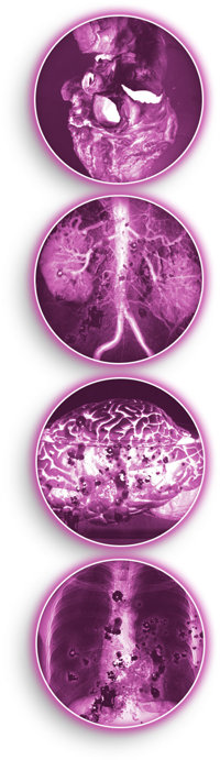 Kokain ger skador på hjärta, njure, hjärna och lungor.