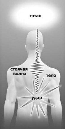 Стоячие волны энергии образуются, когда волна, вызванная ударом, запирается в нервном канале.