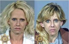 Drug Abuse Makeovers | 10 Worst Before and After Pictures