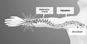 Pijnstillers blokkeren ook het elektrische geleidingsvermogen van de zenuwkanalen.