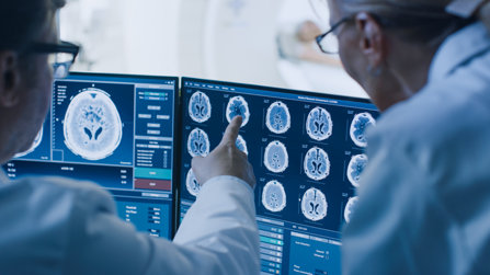 Radiologist discuss brain scans results