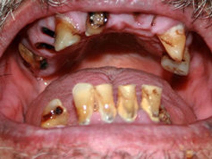 L Ron Hubbard Teeth