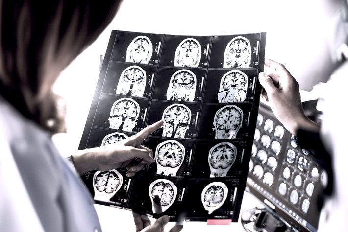 Doctor checking brain scans for dementia.