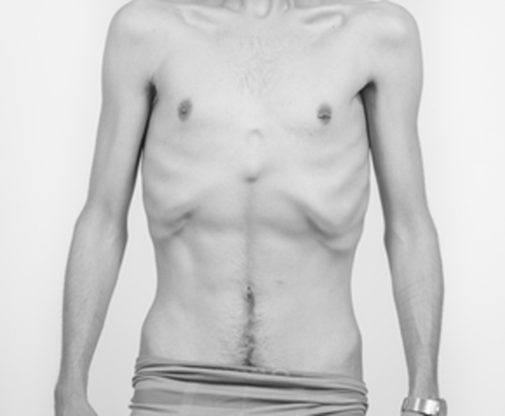 Receta casera para quitar la grasa abdominal picture 2