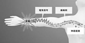 また鎮痛剤は、神経経路の電気伝達を妨害する。